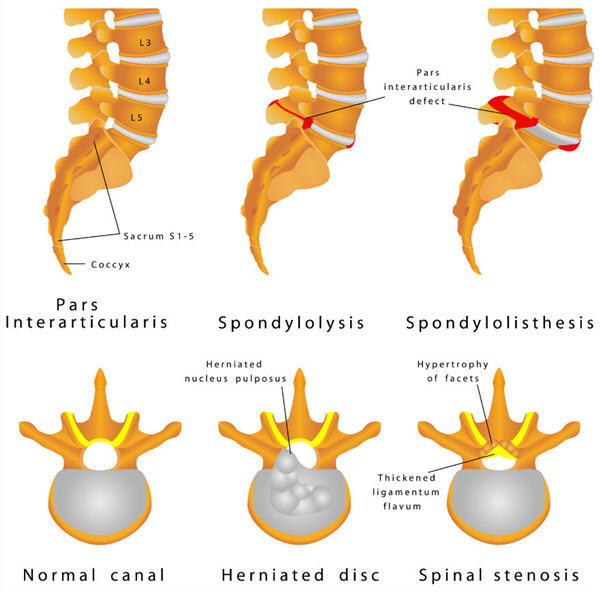 Spine, Normal, Herniated Disc and Spinal Stenosis