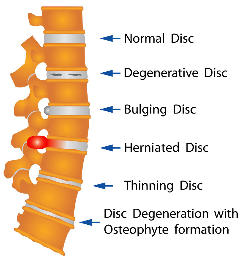 Various Disc Ailments Illustrated