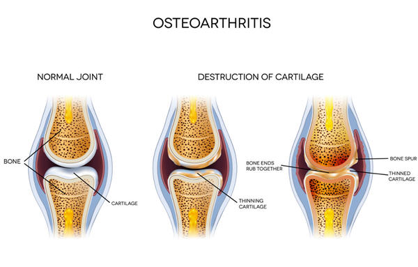 Osteoarthritis Cartliage Destruction